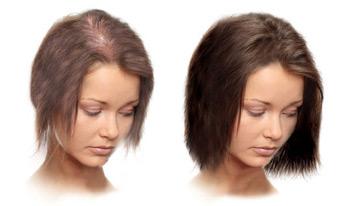 Zabieg peptydowy na włosy